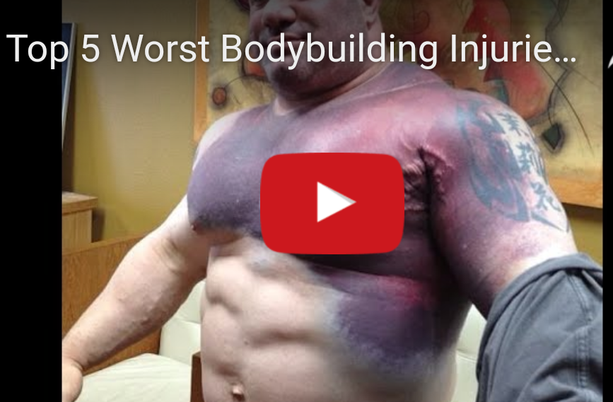 The 5 Worst Bodybuilding Injuries Ever :(